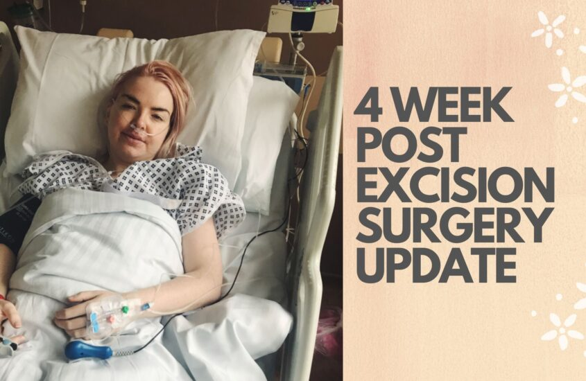 4 week post Excision surgery update
